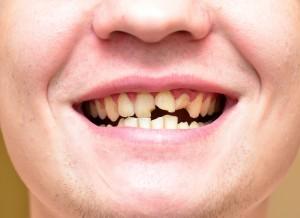 歯並び悪い