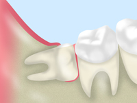 treatment_wisdom_tooth_01