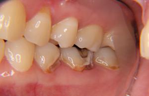 虫歯の状態