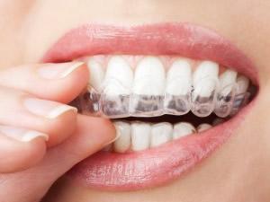 就寝時にマウスピースを使用すれば歯や周囲の組織の負担軽減になります。